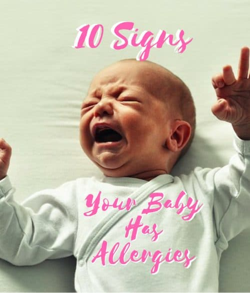 signs your baby has allergies