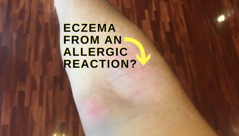 Can eczema be an allergic reaction