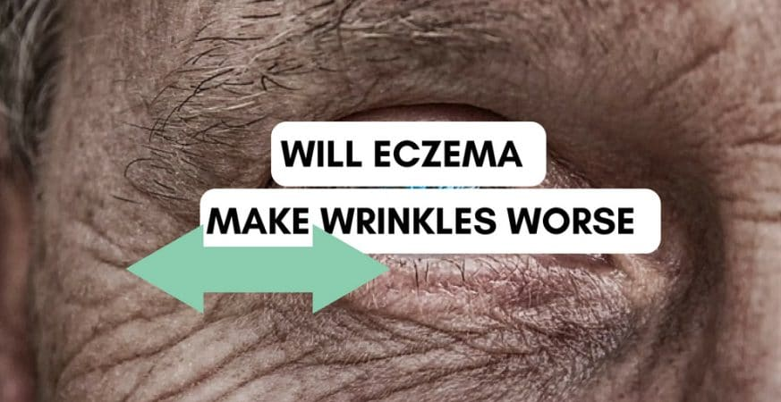 Will eczema make wrinkles worse around the eyes