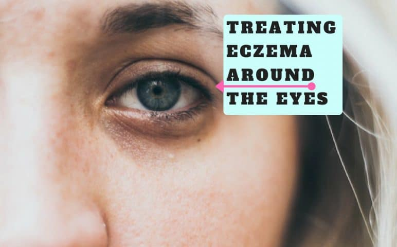 treating eczema around the eyes - natural remedies